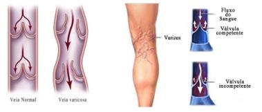 varizes-1