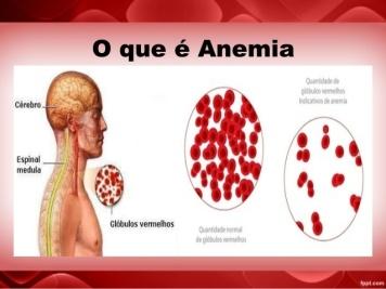 caso-clinico-anemia-ferropriva-7-638