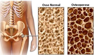 principais-sintomas-da-osteoporose-4