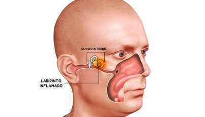 Labyrinthitis-or-Inner-Ear-Infection