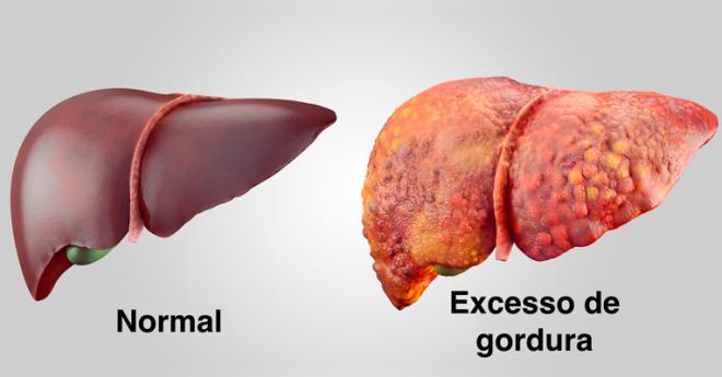 sintomas-de-gordura-no-figado