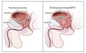 300px-Benign_Prostatic_Hyperplasia_nci-vol-7137-300